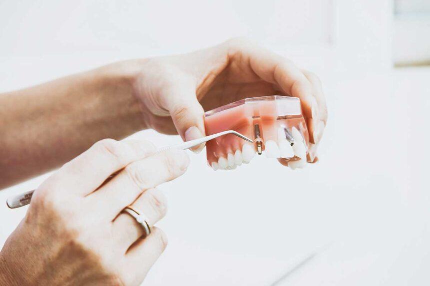 Dental Implants Coney Island NY